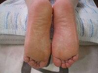 掌蹠膿疱症改善